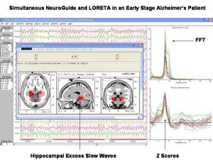 What about Neuropsychological Tests? - Cognition and Mental