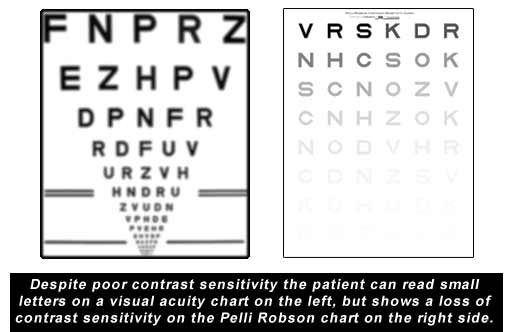 Contrast Sensitivity Is A Better Measurement Of Real World Functioning Than Visual Acuity Failure To Test May Leave Patient With