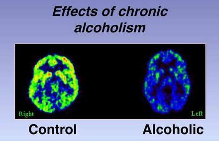 La profiláctica del alcoholismo entre los empleados ovd