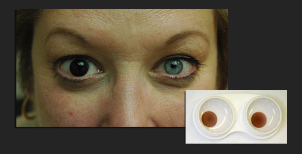 Achromatopsia Info Contact Lenses For Achromatopsia