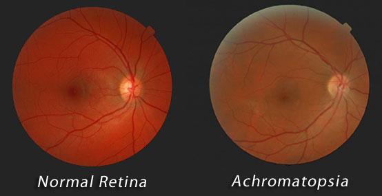 Achromatopsia Info Reduced Visual Acuity