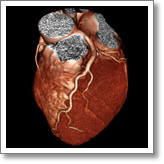 Heart Surgery in Newport Beach, Orange County, Southern California