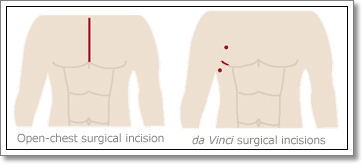 Minimally Invasive Heart Surgery Incisions