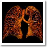 Lung Surgery in 3D
