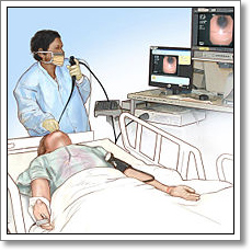 Video Assisted Thoracoscopic Surgery