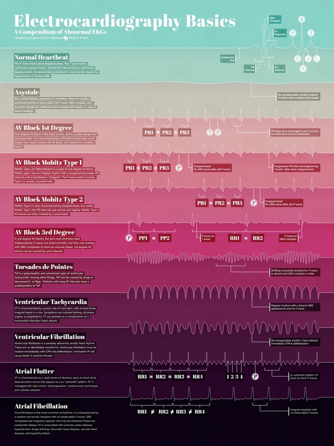Electrocardiography Basics infographic science illustration poster
