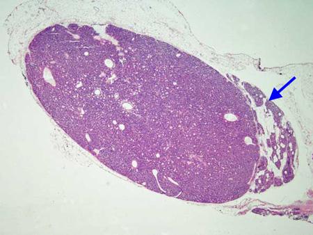 primary hpt causes endocrinesurgerynetau