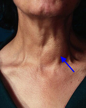 Parathyroid Cancer on tietze syndrome symptoms