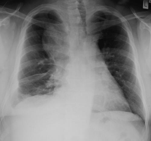 retrosternal goitre endocrinesurgerynetau