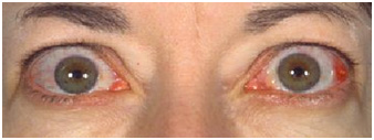 Thyroid Eye Disease Endocrinesurgery Net Au