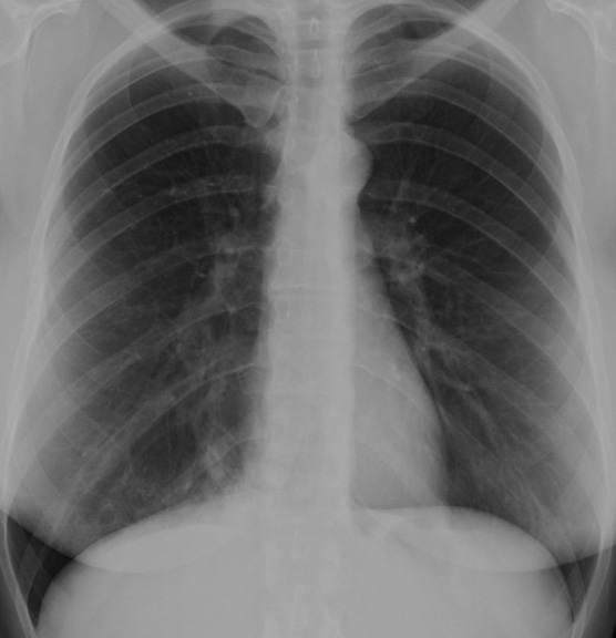SOUTHWEST JOURNAL of PULMONARY & CRITICAL CARE - Imaging