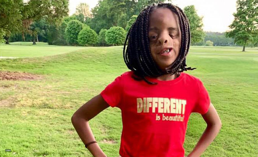 So Inspiring! Destiny Strickland, 11, girl born with a rare condition, proves 'different is beautiful'