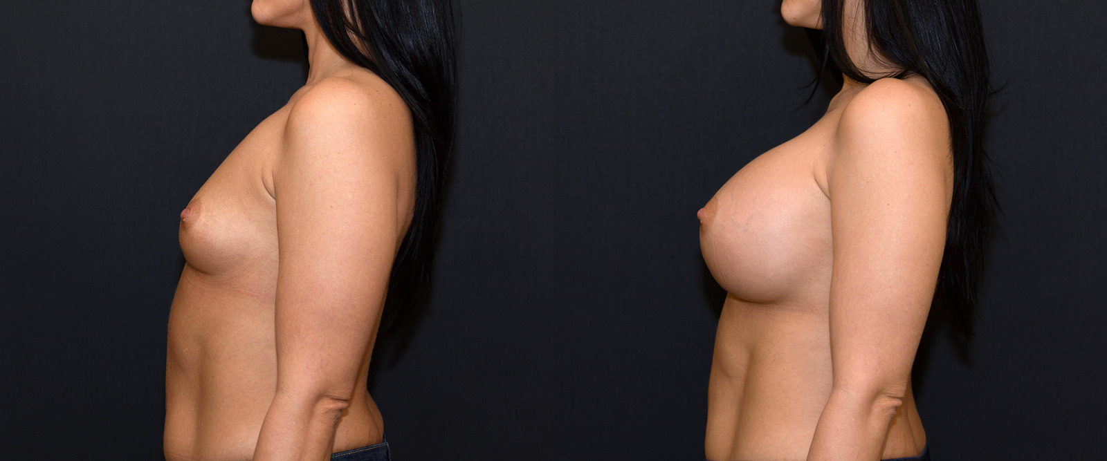 large-breast-augmentation-750cc-dd-cup-before-after-3.jpg