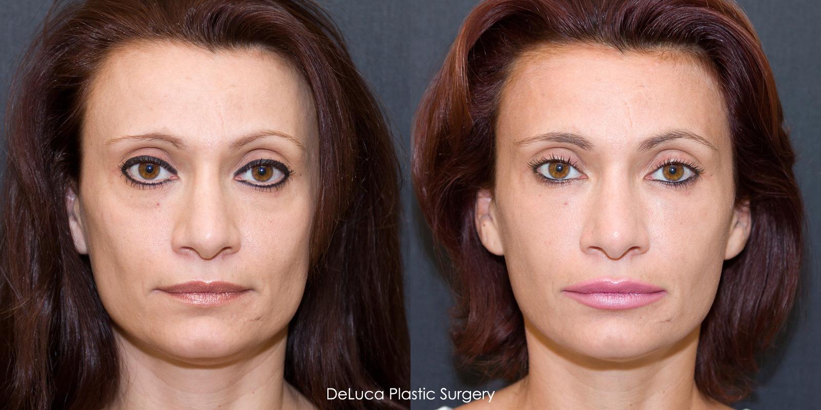 Juvederm Cheek Filler Before and After