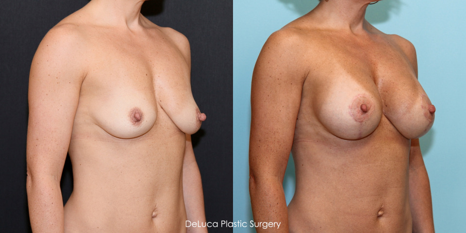 Before After Photos Deluca Plastic Surgery Nude and Porn Pictures