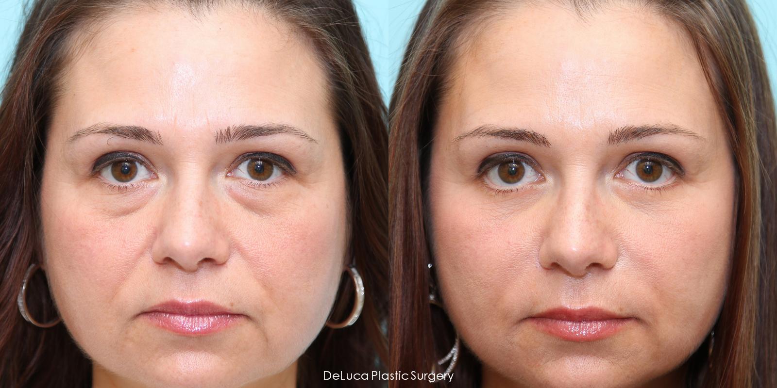 чистка лица ультразвуковым скрабером
