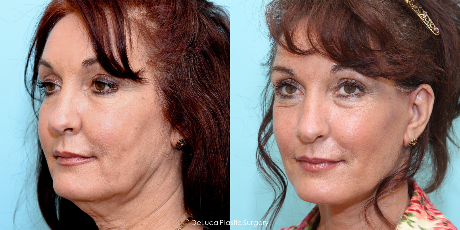 Facelift before and after photo- Deluca Plastic Surgery