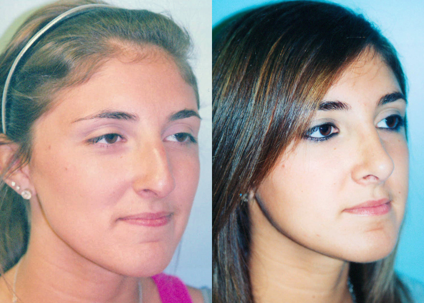 Plastic Surgery Before And After Nose