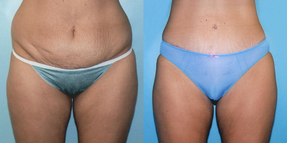 Breast augmentation albany ny