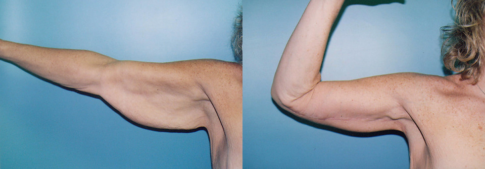 Arms weight loss tips in tamil