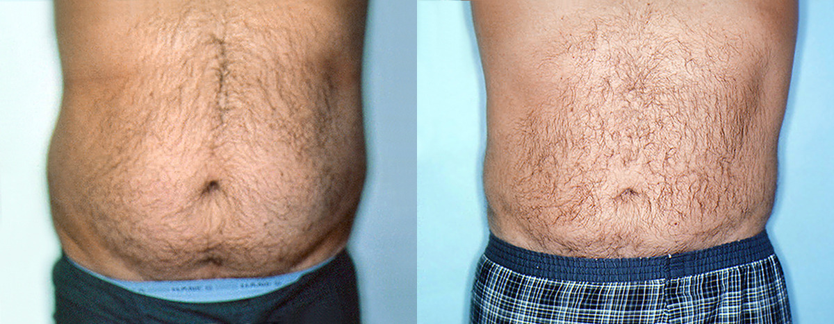 After Photos  gt  Male Stomach   Love Handles Liposuction  gt  Male Stomach    Liposuction Men Stomach