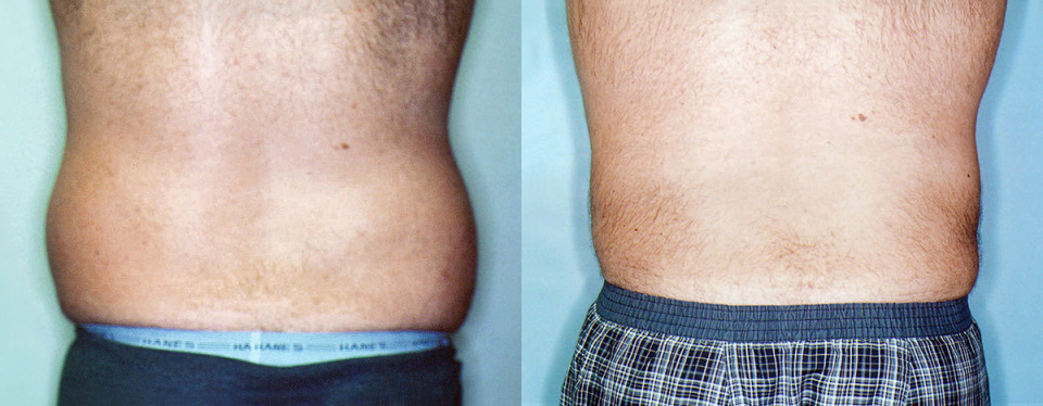 Before & After Photos > Male Stomach + Love Handles Liposuction > Male